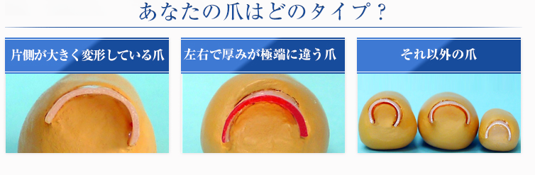 巻き爪ロボの種類